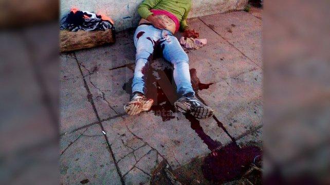 El herido perdió mucha sangre, ya que, la bala tocó la arteria femoral.